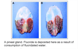 the-effects-of-fluoride-on-the-pineal-gland