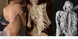 Fibrodysplasia-Ossificans-Progressiva